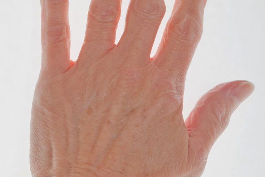 artrita degetul mare