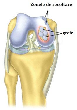 refacerea articulațiilor cartilaginoase și ligamentare