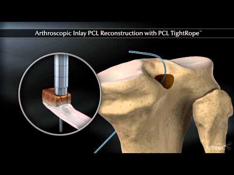 antiinflamatoare nesteroidiene articulare artroza articulațiilor arcului L3 L4 L5