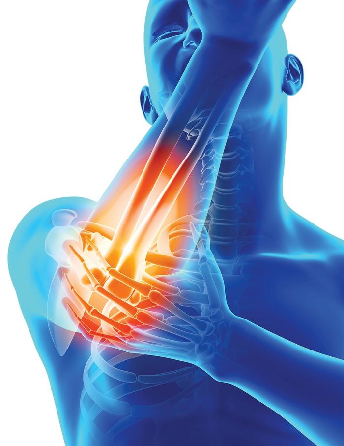dureri musculare la nivelul articulațiilor)
