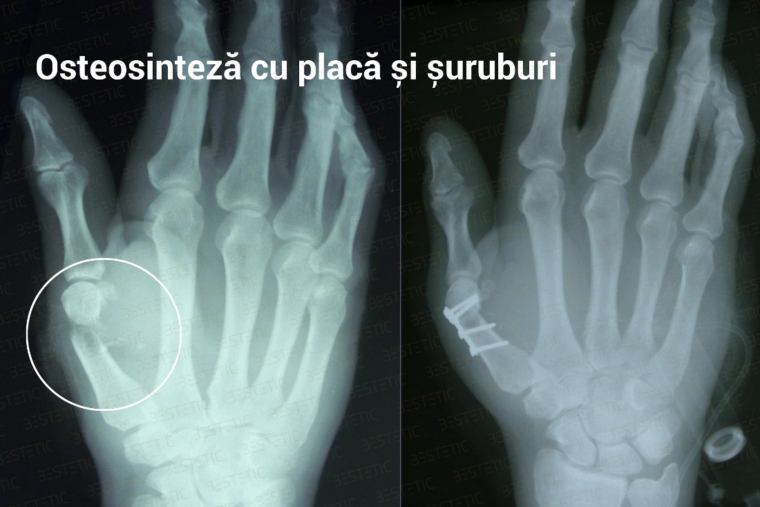recuperarea unei mâini după fractura unei articulații radiale