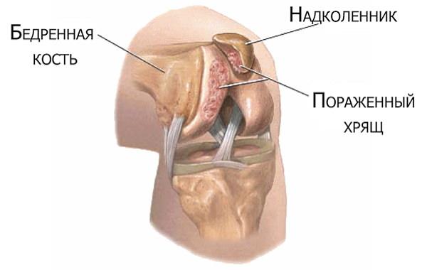 Artroza articulațiilor genunchiului