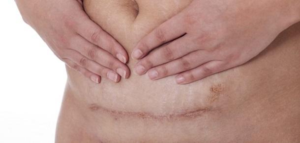 dureri musculare și articulare după naștere)