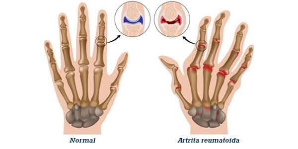 simptome de artrită