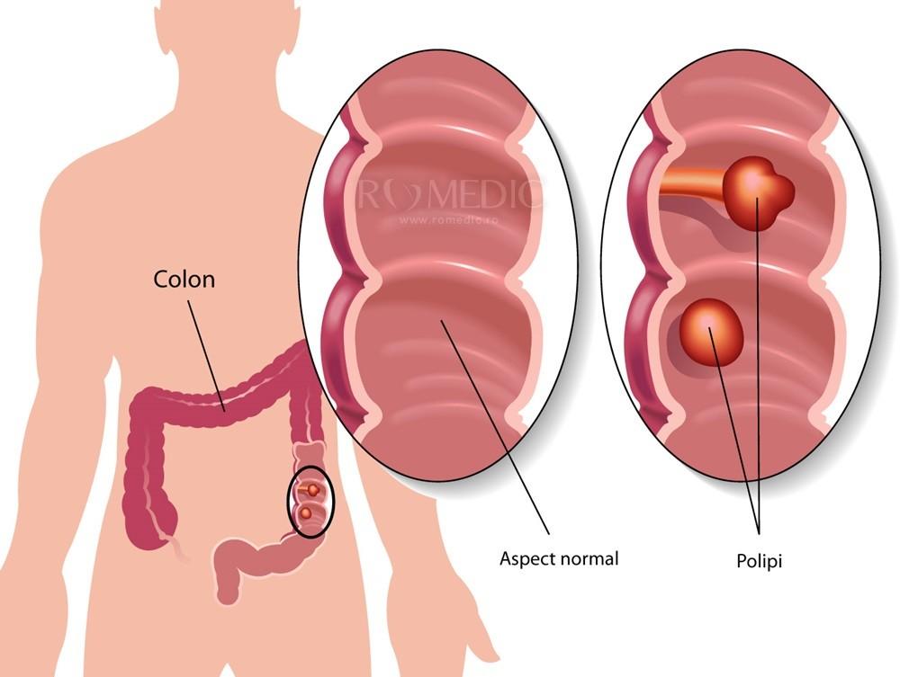Cum se tratează polipii în articulații, Polipii uterini. Tratamentul polipilor uterini