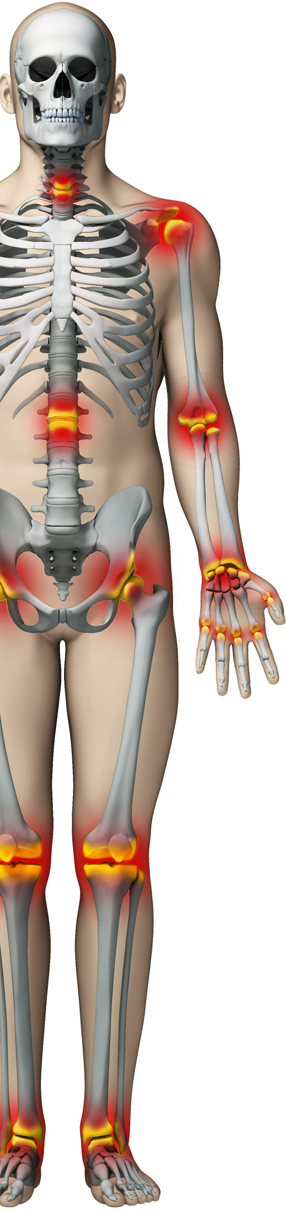 Sectia de reumatologie | Tratament afectiuni cu caracter reumatic