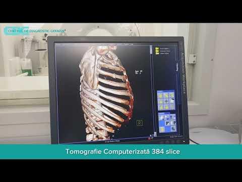 articulațiile rănite după camera de aburi)