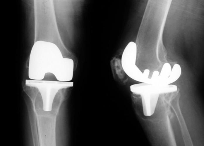 artroplastia genunchiului de șold)