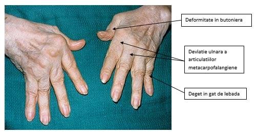 ulei de brad pentru inflamarea articulațiilor dureri la nivelul articulațiilor pelvine