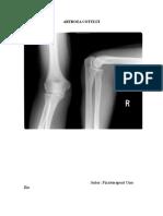 artroza articulației cotului 3 grade tratament