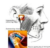 durere în articulația temporofacială)