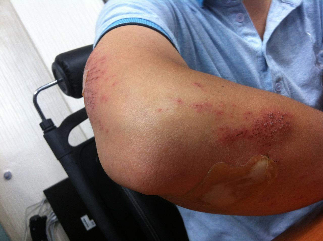 rețete pentru durere în articulația cotului)