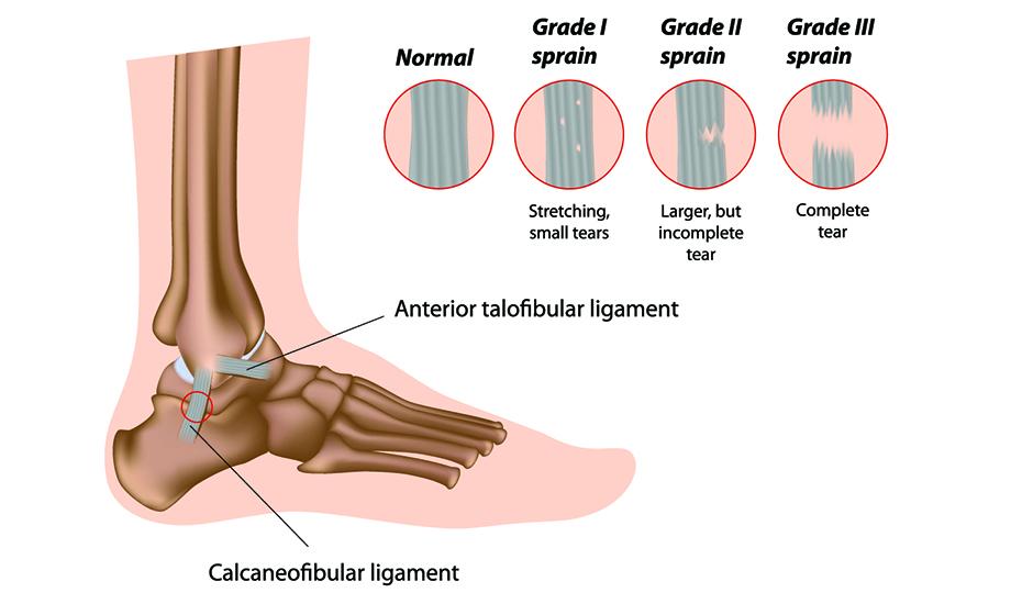 artroza articulațiilor gleznei 2 grade)
