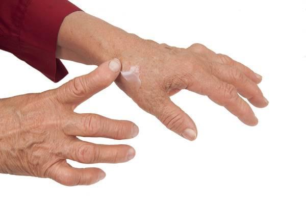 articulațiile mâinilor apar de frig