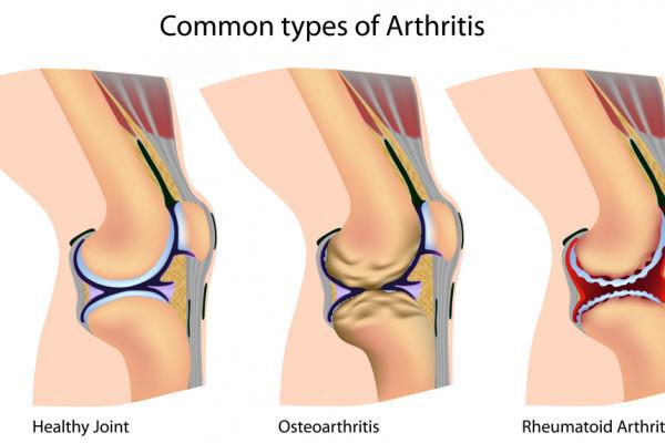 unde se tratează sinovita articulației genunchiului)