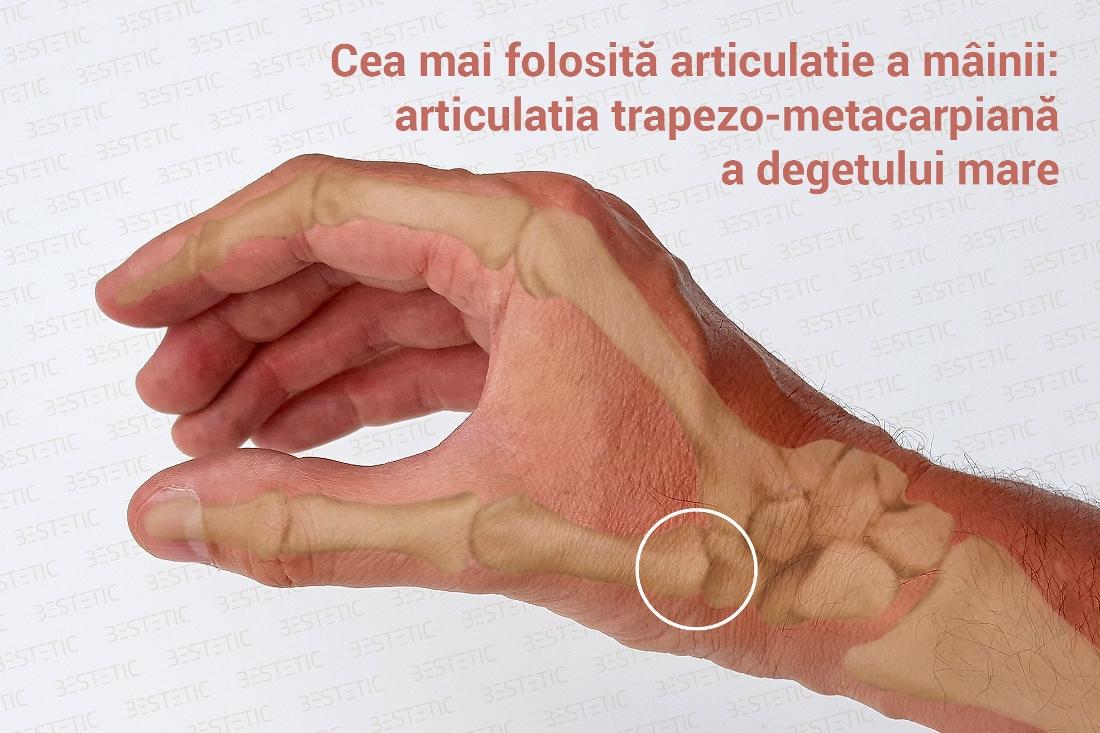 artrita a articulațiilor interfalangiene ale degetelor)