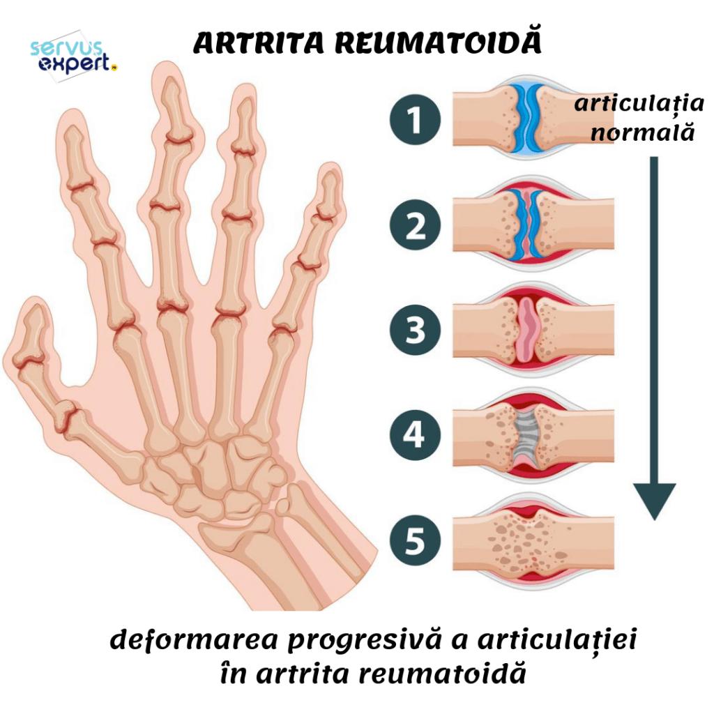 artrita posttraumatică a degetelor