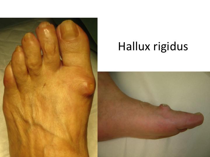 artroza degetelor de tratament gimnastica cu artroza