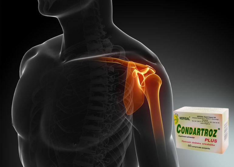 cauzele artrozei și tratamentului