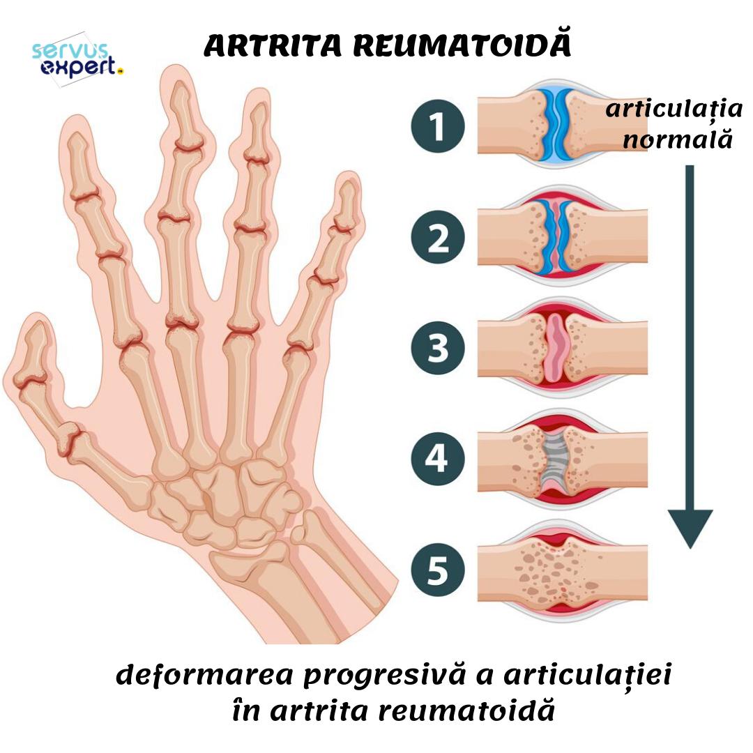 dureri de deget cu artrită