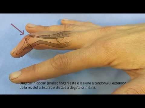bump pe articulația degetului cum se tratează