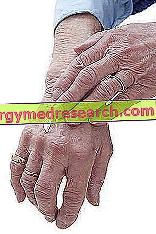 ce boli sunt însoțite de durere în articulații)
