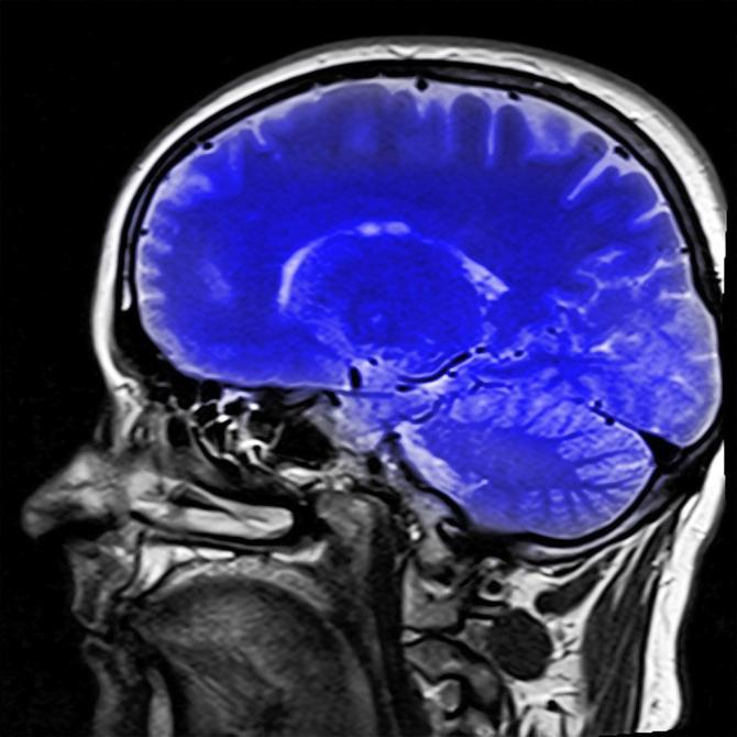 umflarea articulației după un accident vascular cerebral