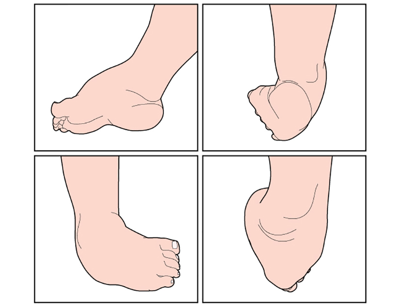 unguent din articulația genunchiului dureri articulare cu scolioză