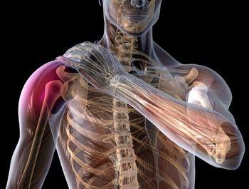 Cauze de durere la umăr