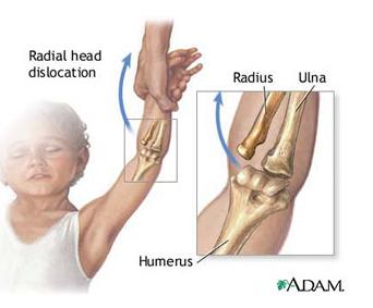 Răniți articulațiile cotului când trageți în sus