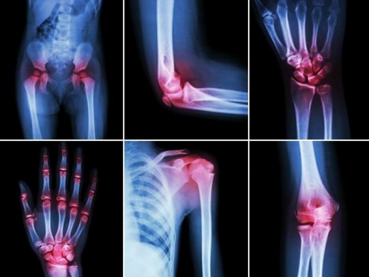cum să tratezi artrita și artroza genunchiului)