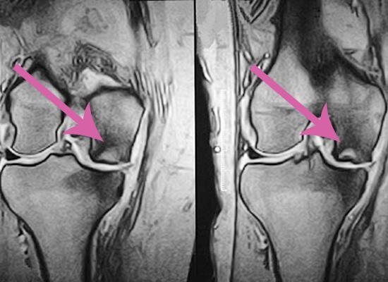 tratamentul osteonecrozei genunchiului)