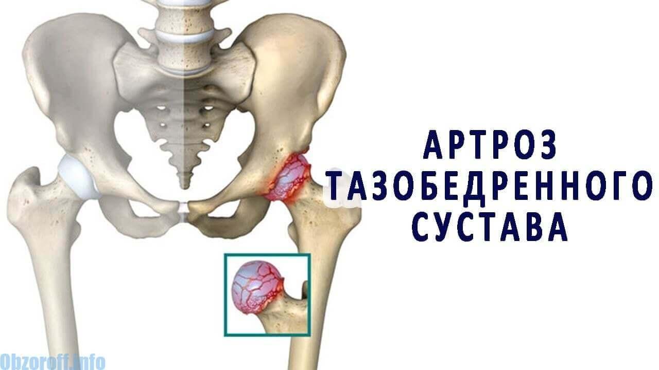 artroza primei etape a articulației șoldului)