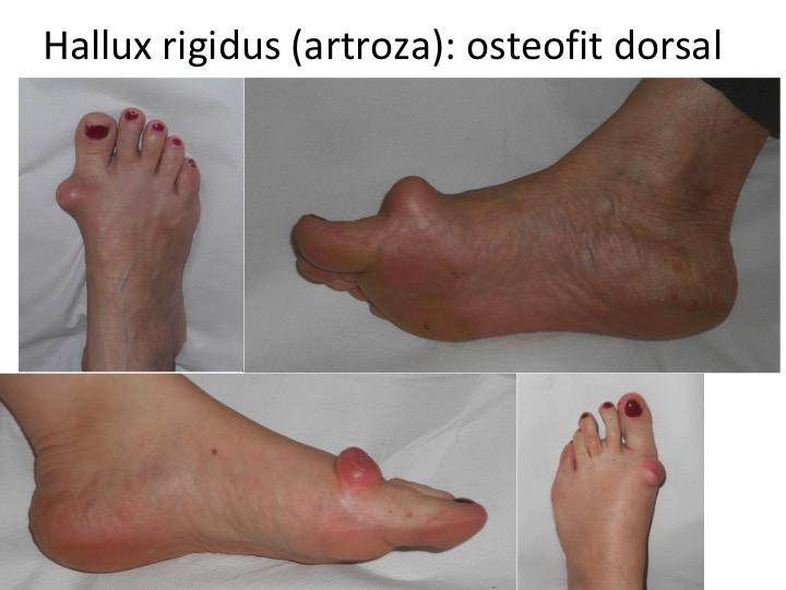 medicamente pentru artroza degetului mare)