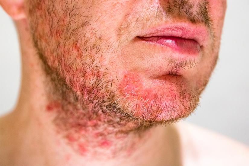 dermatită seboreică și dureri articulare