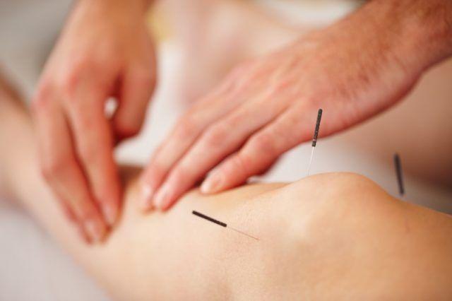 Acupunctura, o optiune viabila in tratamentul gonartrozei
