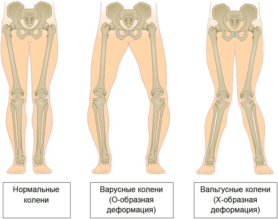 istoric medical falsă articulație a tibiei)