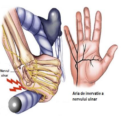 probleme la nivelul încheieturii mâinii