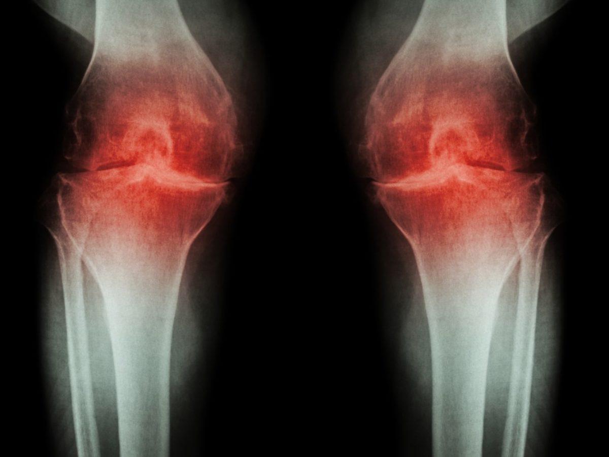 plante medicinale pentru artroza articulației încheieturii