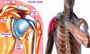 periartrita posttraumatică a tratamentului articulației umărului