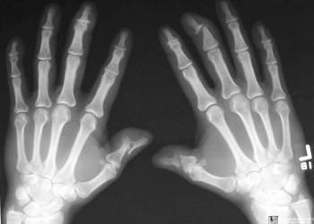 artrita nodulelor articulare de pe degete