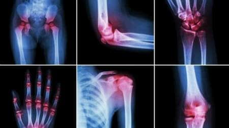 fie că sunt comandate cu artroza articulațiilor