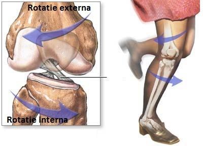 Leziunile ligamentelor incrucisate ale genunchiului