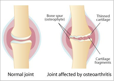 artroza articulațiilor intervertebrale ale gâtului)