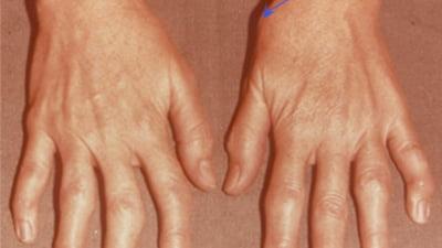 artroza sau artrita degetelor)
