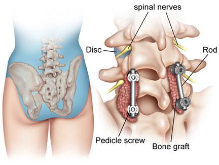 curățarea articulațiilor de durere în coloana vertebrală)