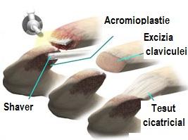 tratamentul artrozei acromioclaviculare