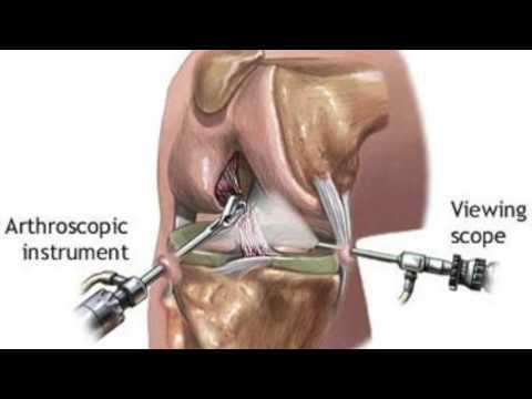 dureri articulare cu ureaplasmoză