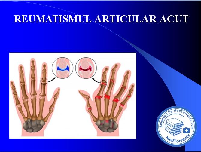 Fasole pentru dureri articulare unguent pentru titlul de osteochondroză