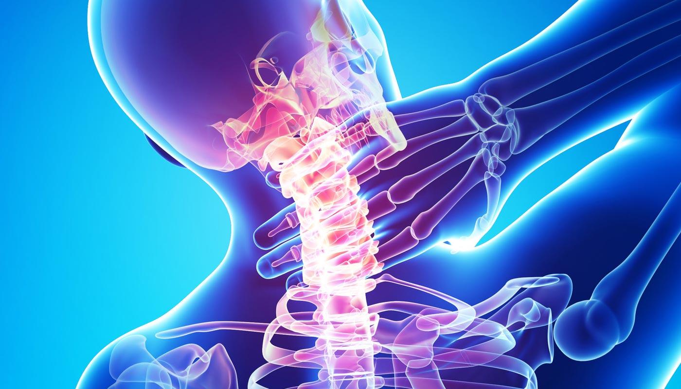 Tratamentul osteochondrozei cervicale cu unguent